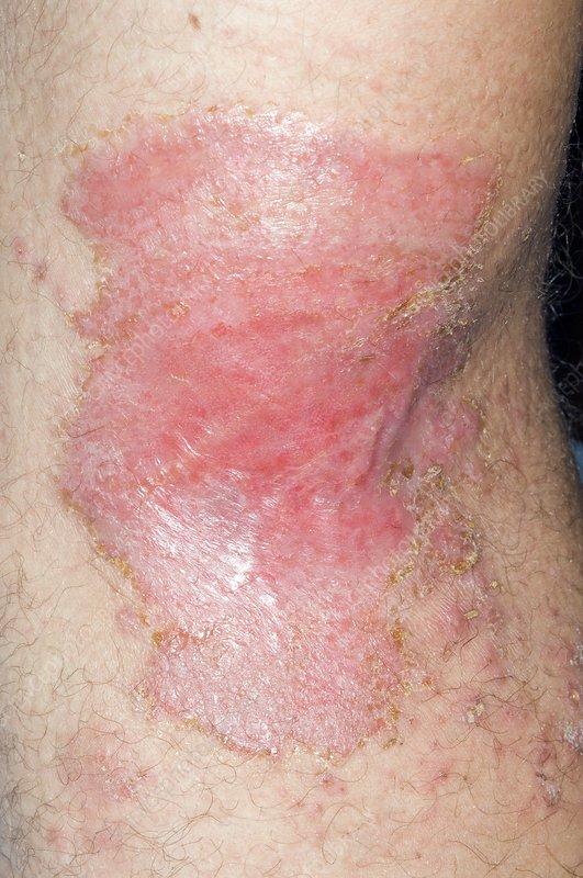 Jellyfish sting on the arm
