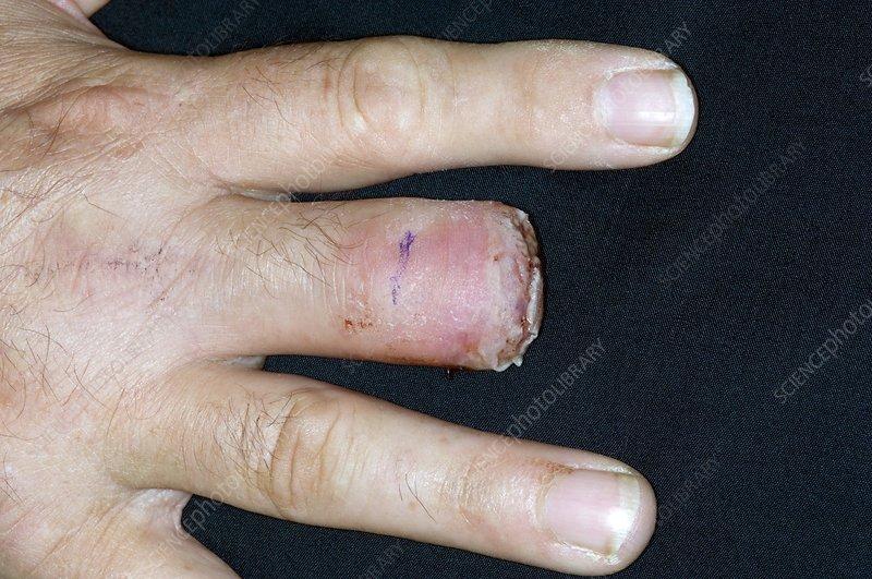 Skin cancer amputation
