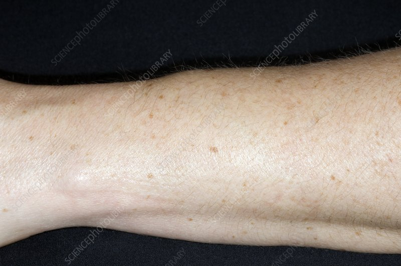 Tenosynovitis of the forearm
