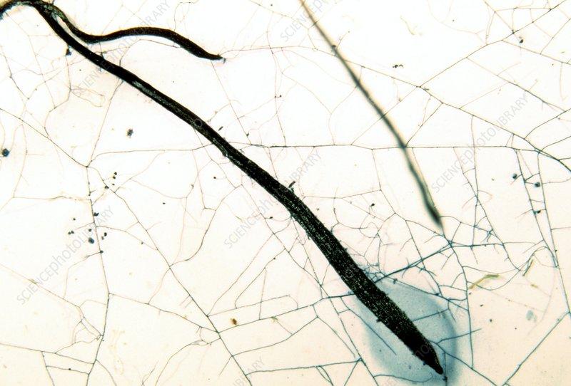 Plant-fungi symbiosis, light micrograph
