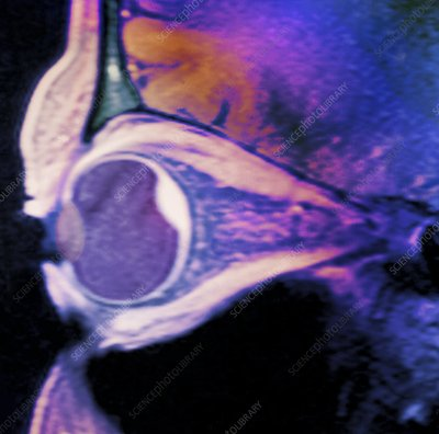 Choroidal haemorrhage of eye, MRI scan