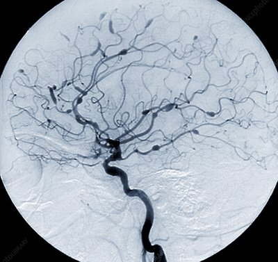 Cerebral aneurysms in Lupus, Angiogram