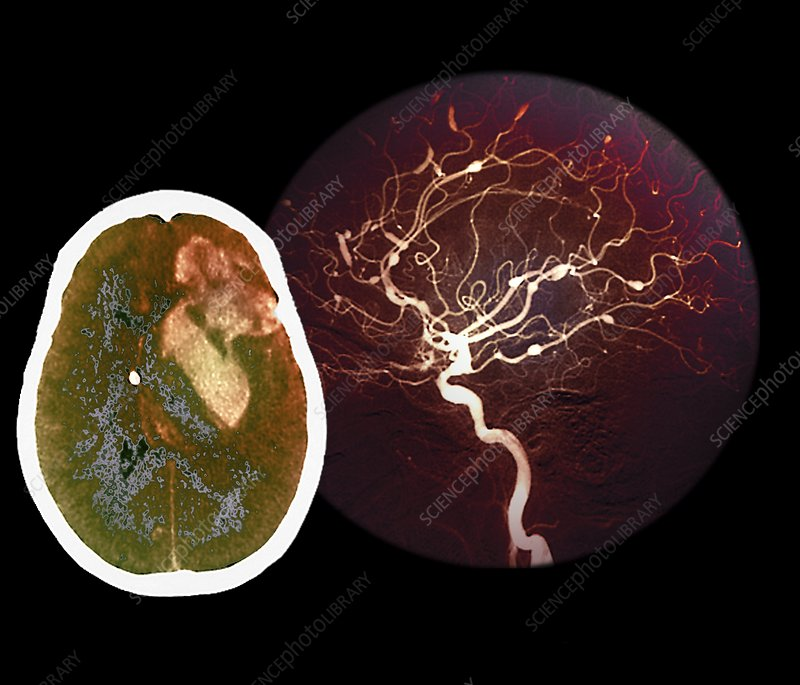 Brain haemorrhage from aneurysm, CT scan
