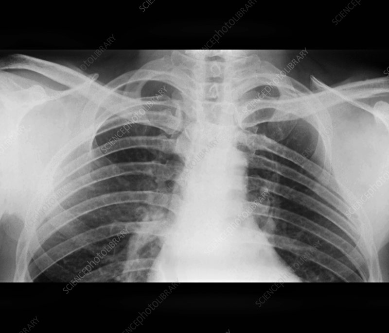 Absence of a rib as a birth defect, X-ray