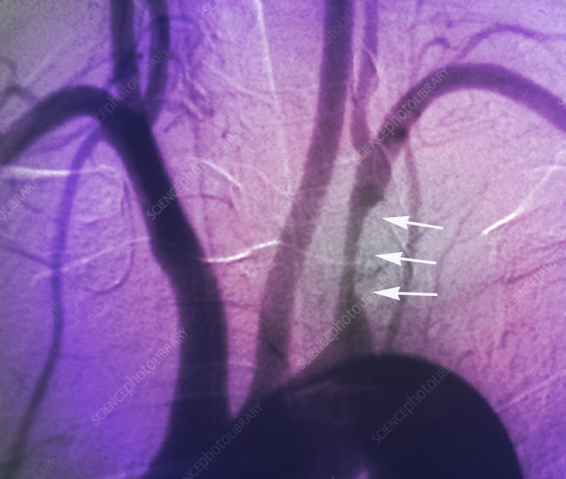 Stenosis of heart artery, angiogram