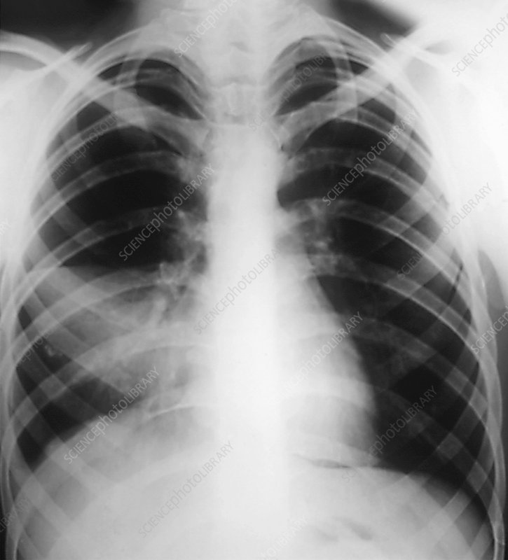 Bacterial pneumonia in lung, X-ray