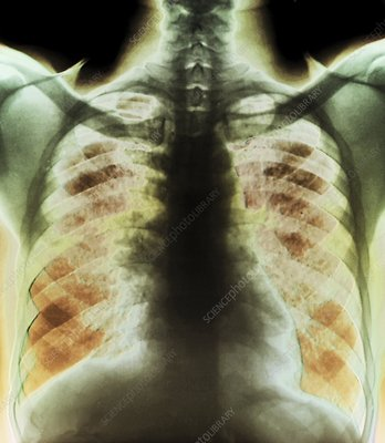 Sarcoidosis of the lungs, X-ray
