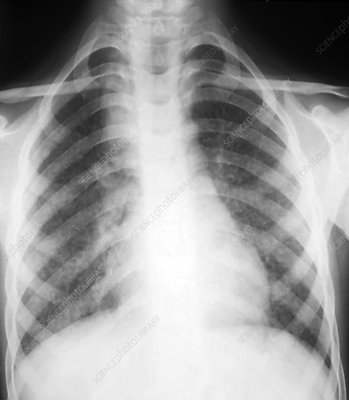 Tuberculosis of the lungs, X-ray