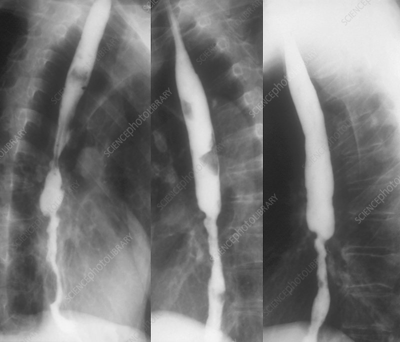 Stent to treat aortic stenosis, X-ray