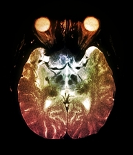 Parkinson's disease brain, MRI scan