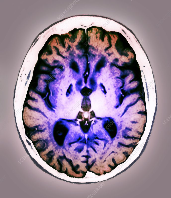 Adult anoxic brain in injury