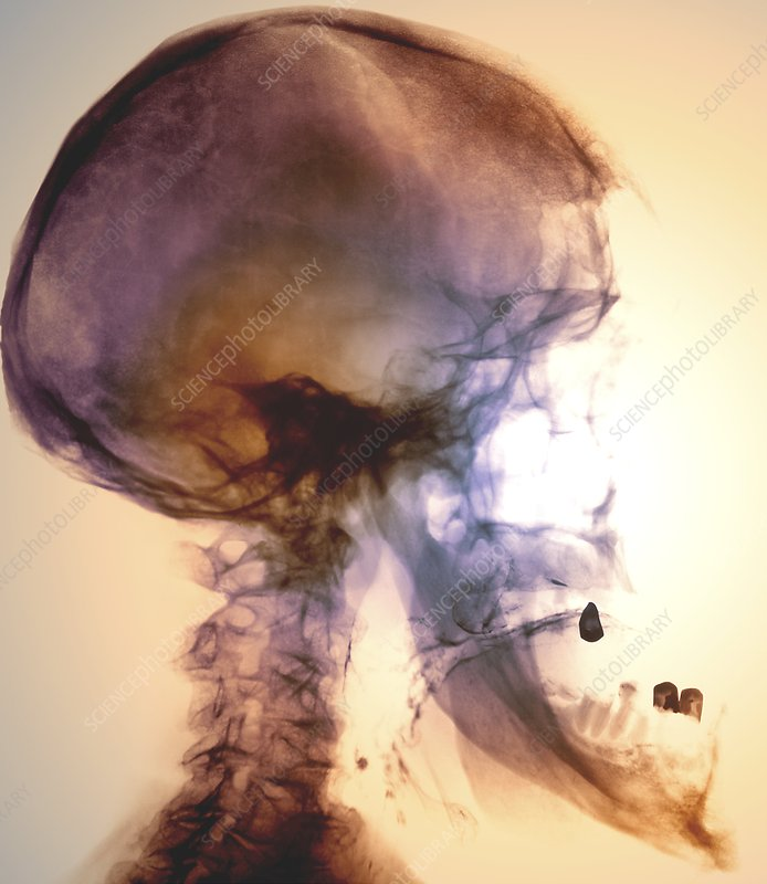 Acromegaly of the skull, X-ray