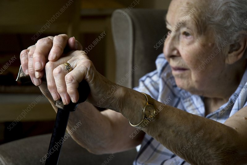 Elderly woman with arthritic hands