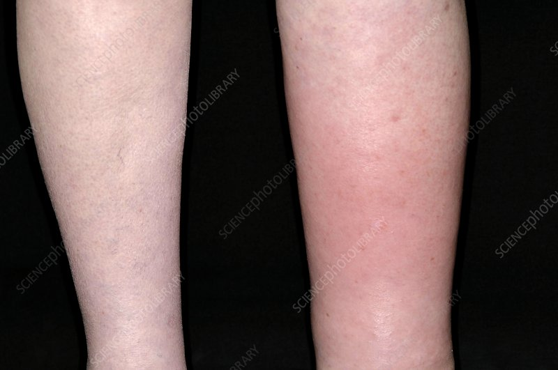 Cellulitis and lymphoedema of the leg