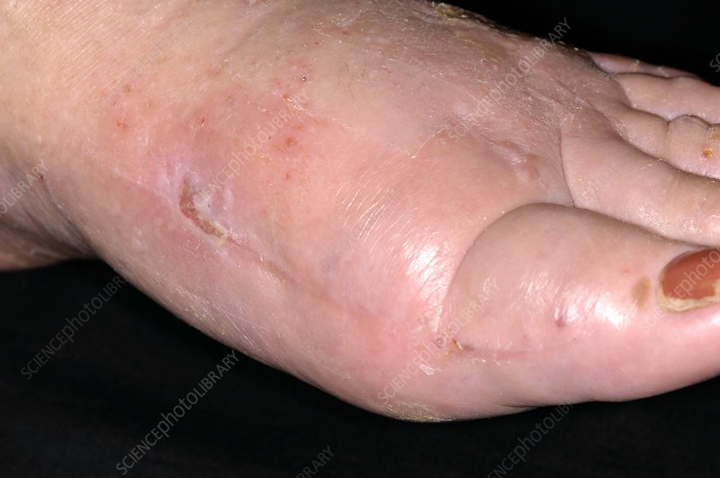 Surgical treatment of bunion