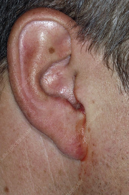 Perforated eardrum with infection