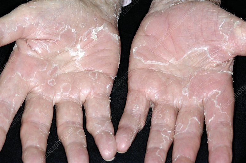 Peeling skin on hands from stress