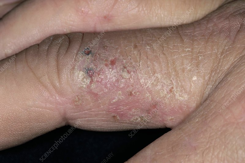 Contact dermatitis on the fingers