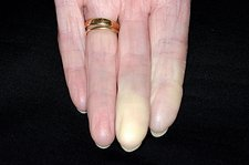 Raynaud's phenomenon in finger
