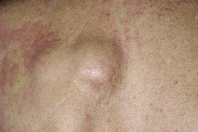Lipoma On Lower Back