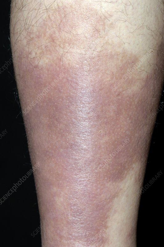 Pigmentation after cellulitis of the leg