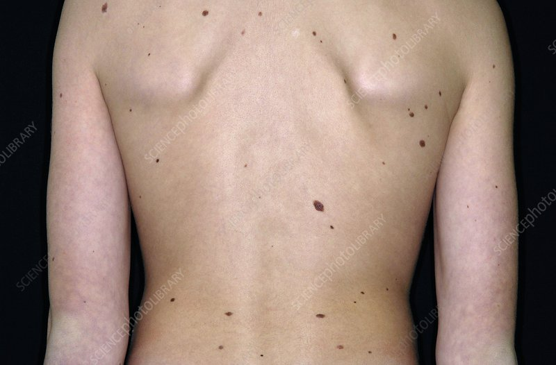 Moles on the skin of the torso