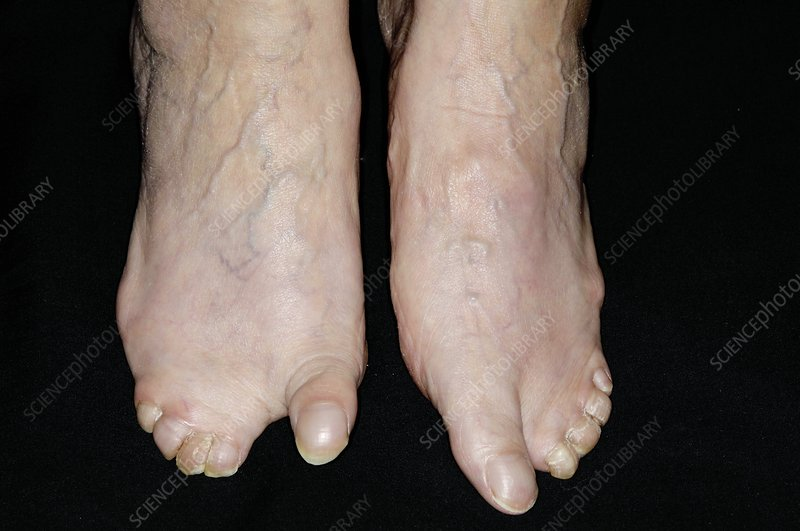 congenital webbed toes - stock image c004/2451 - science photo library, Skeleton