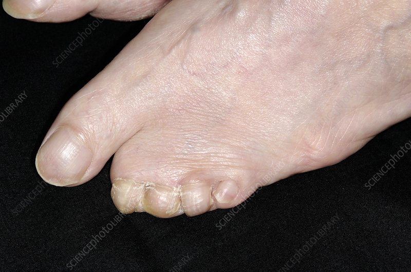 congenital webbed toes - stock image c004/2452 - science photo library, Skeleton