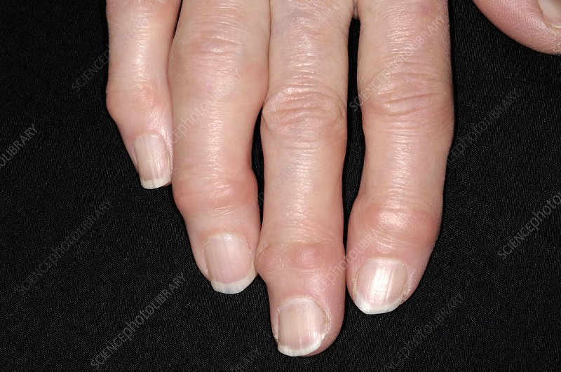 Osteoarthritis of the fingers