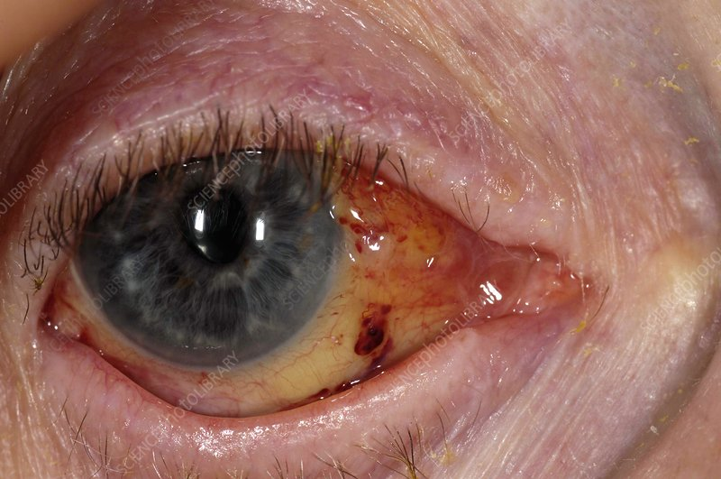 Eye after cataract surgery