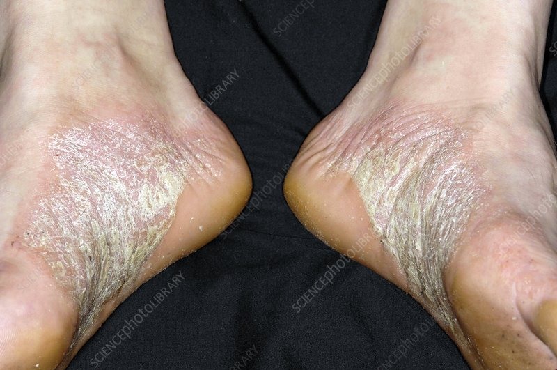 Acute psoriasis on the feet