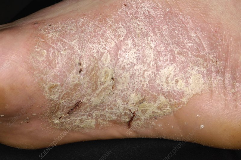 Acute psoriasis on the foot