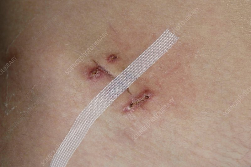 Infected appendectomy wound