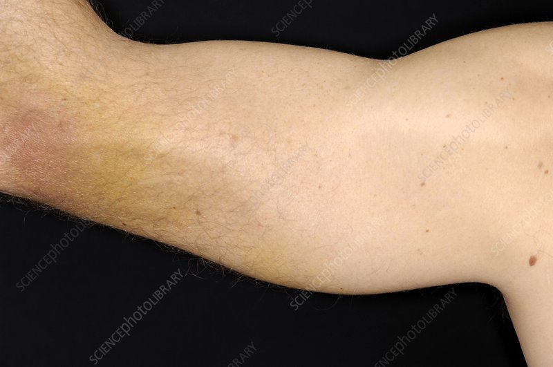 Torn triceps muscle of the arm