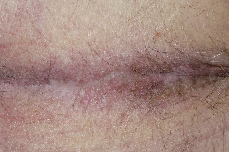 Perineal scar after cancer surgery