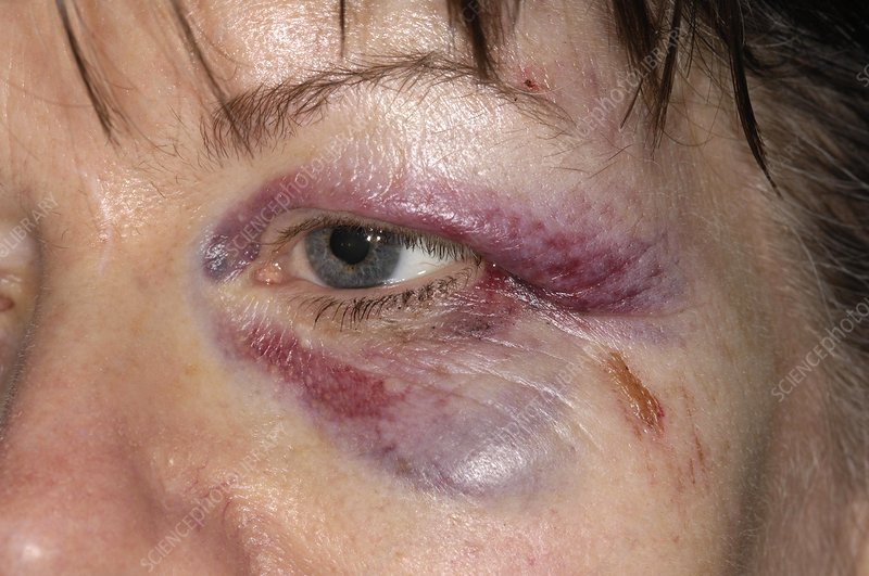 Black eye after a fall