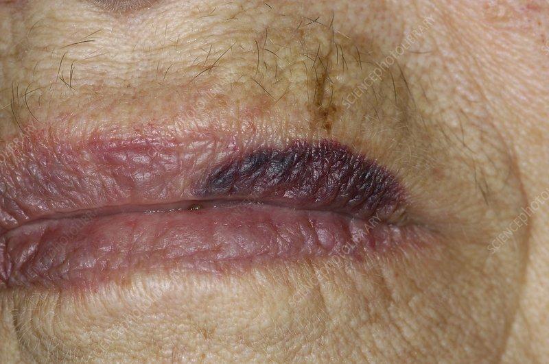 Spontaneous bruising on the lip - Stock Image - C004/2484 ...
