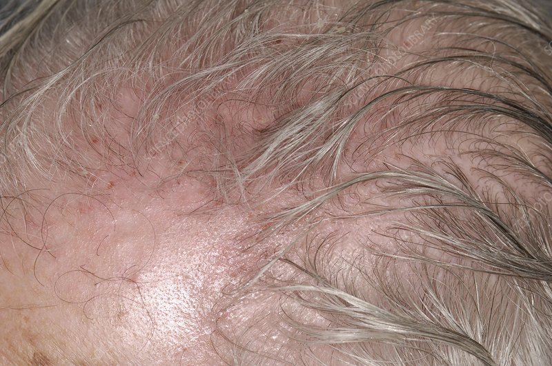 Scalp irritation after shingles
