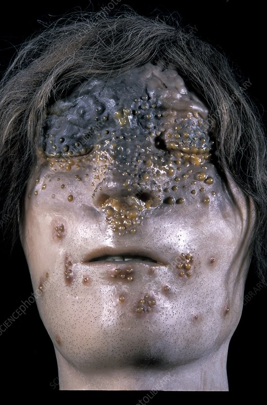 glanders infection model - stock image c004  2604