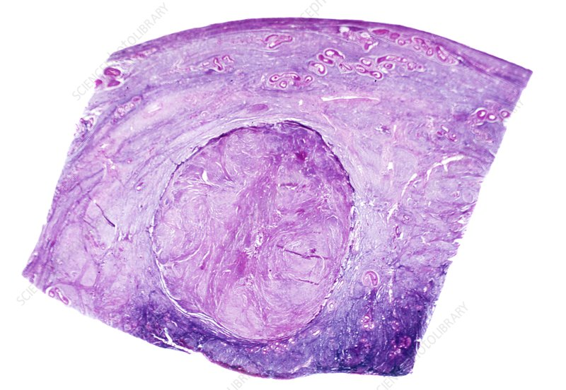 Uterine fibroid, light micrograph