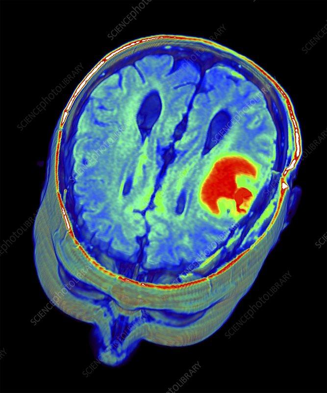 brain mri scan 3d - photo #3