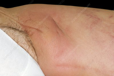 Cellulitis of the thigh