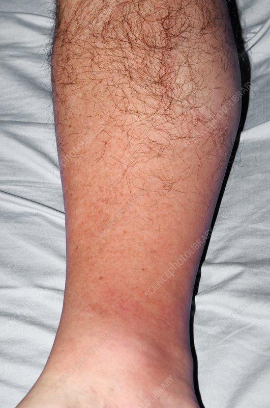 C0044223 cellulitis of the leg spl jpg