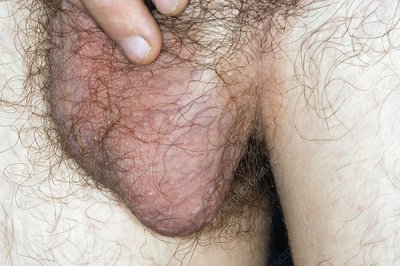Varicocele in the scrotum