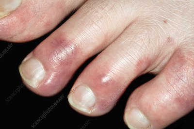 Chilblains of the toes