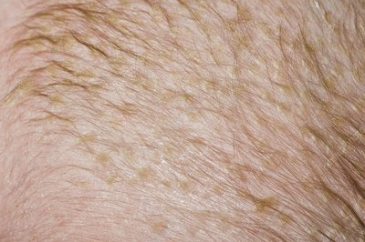 Skin scales in cradle cap