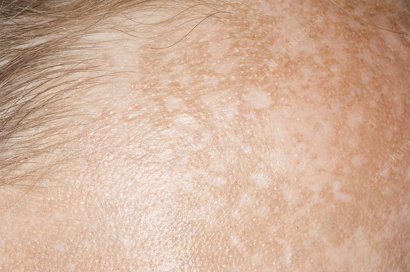 Chloasma skin patches