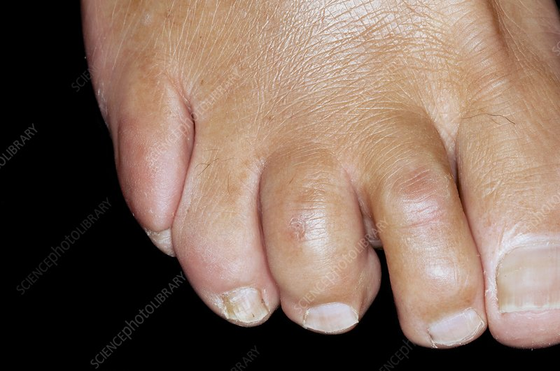 Dislocated toes