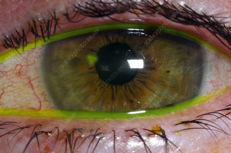 Corneal abrasion from contact lens