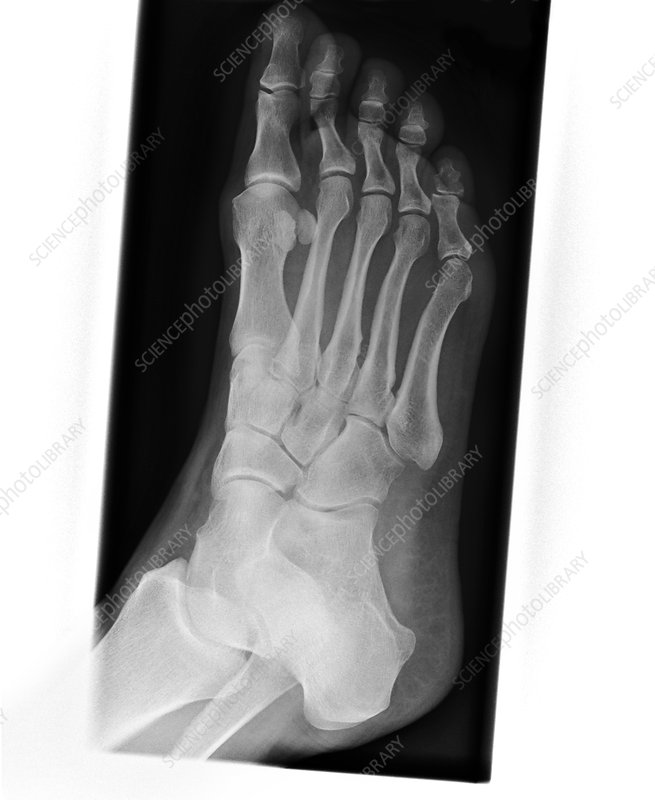 Stress fracture of foot (image 2 of 4)